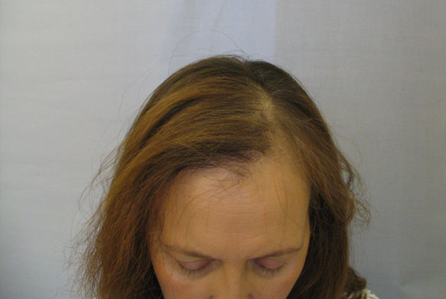 Radiotherapy and Hair Loss